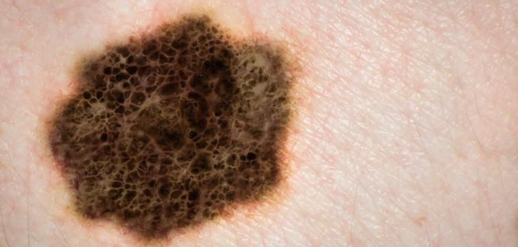 Keytruda - The Next Step in Advanced Melanoma Treatment?
