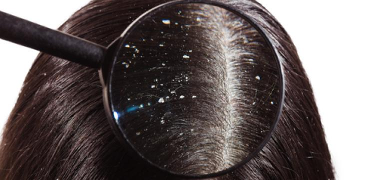 Got Dandruff? How Natural Therapies Can Help You