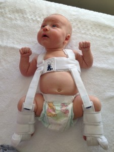 Infant Developtal Hip Dysplasia: A Clinical Understanding