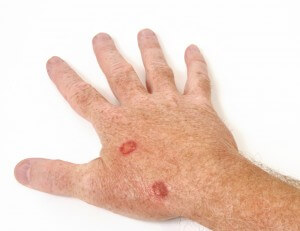 Wart Treatment Options: Have You Tried Everything?