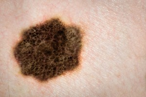 advanced melanoma