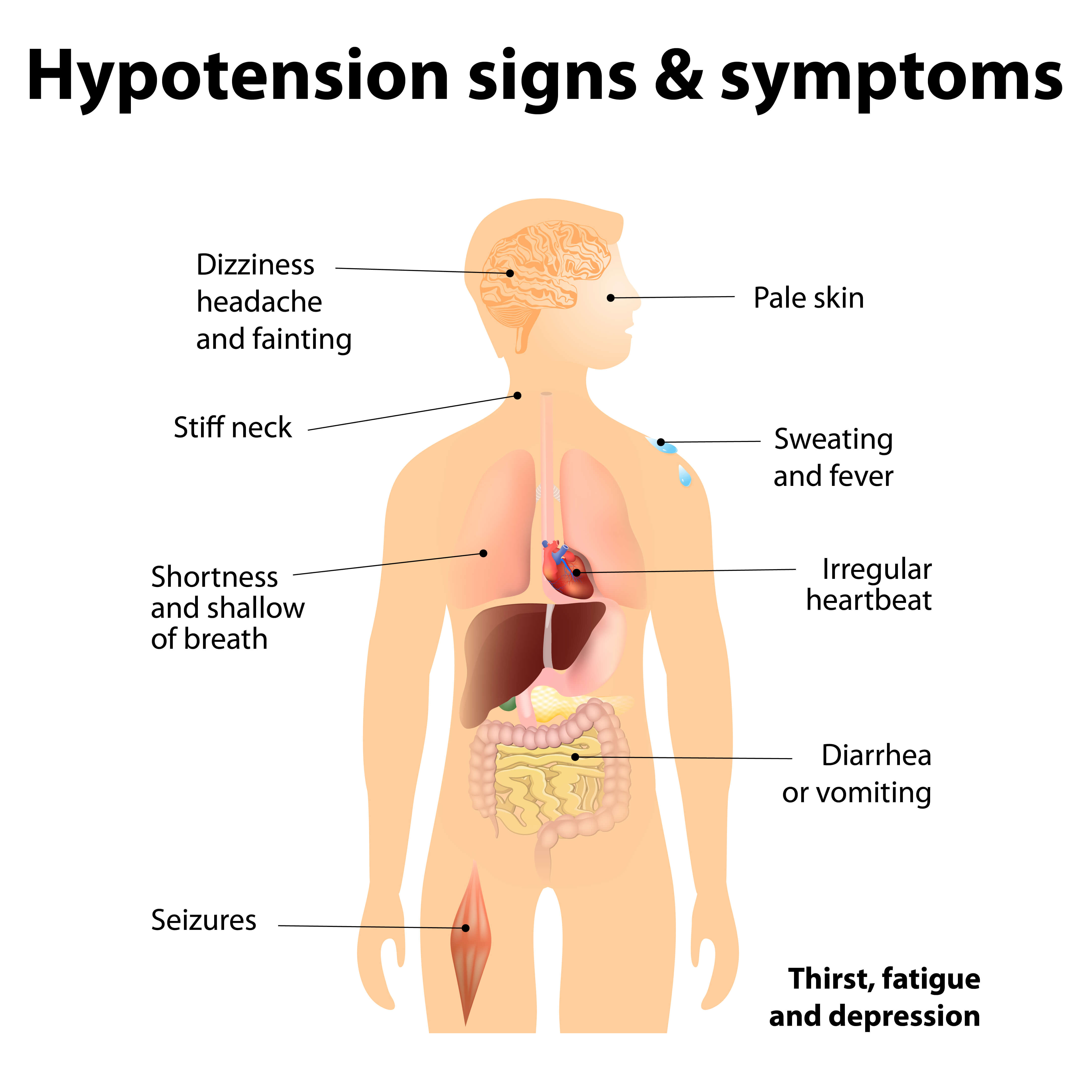 Treatment of chronic hypotension: Detail the protocols for the management of low blood pressure