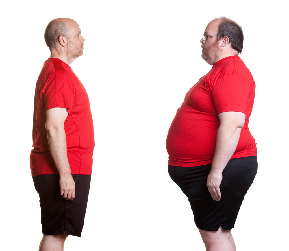 no to obesity Depression and obesity share common risk factors some factors apparently can trigger both obesity and depression belonging to a lower socioeconomic class and not participating in physical.