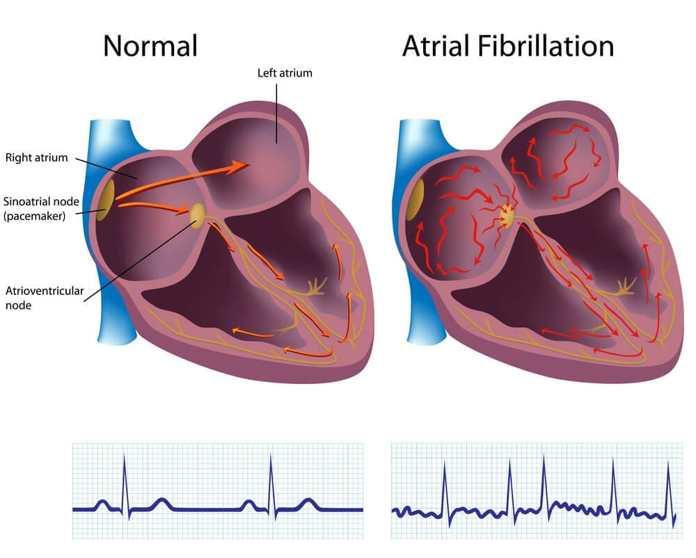 atrial fibrillation causes pathophysiology and treatment essay