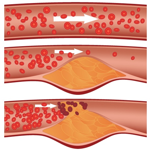 Atherosclerosis Explained
