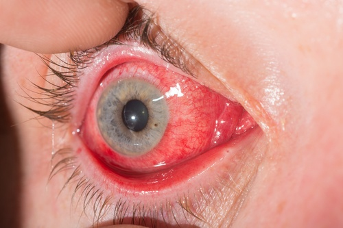 red eye conjuctivitis