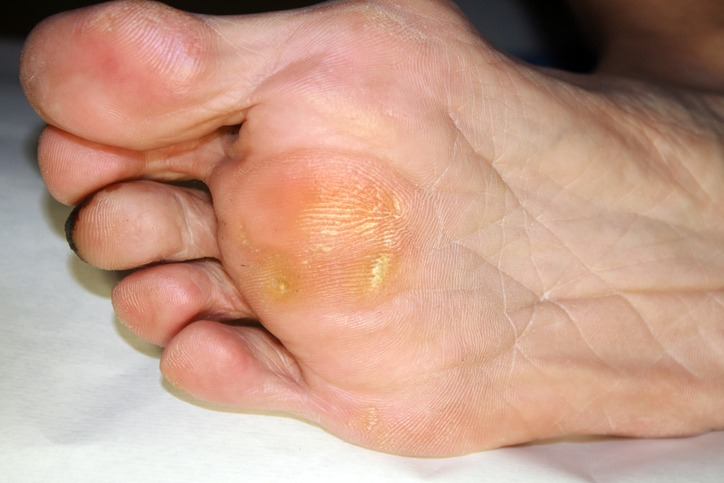 corn, calluses and bunions