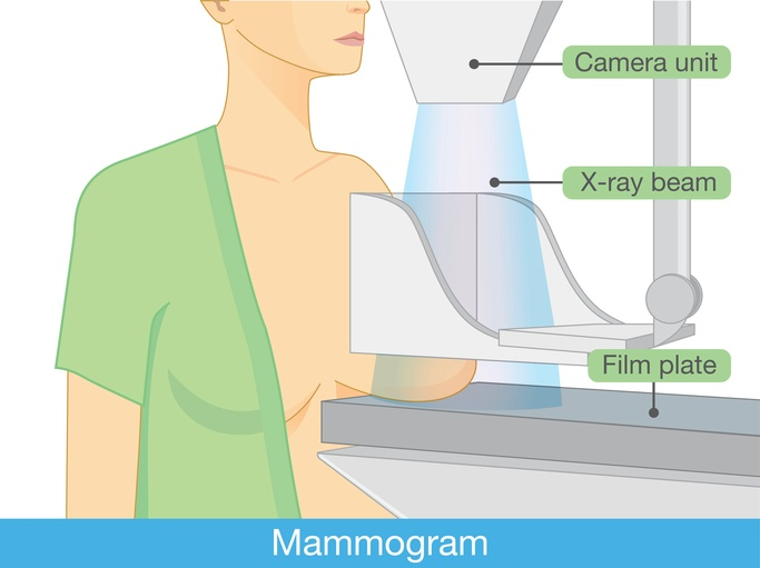 What does a mammogram involve?