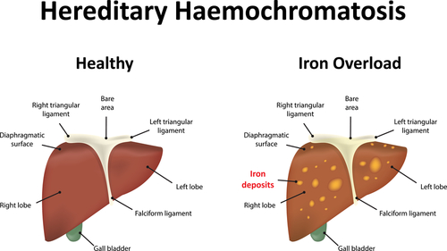 Foods To Avoid With Hemochromatosis