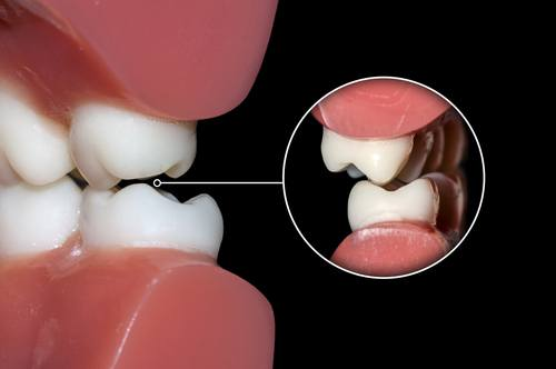 teeth grinding misalignment