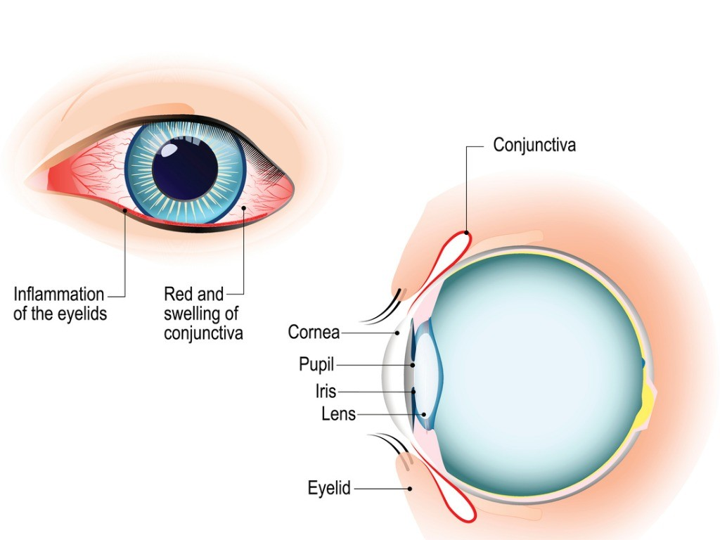 Common causes of red veins in eyes
