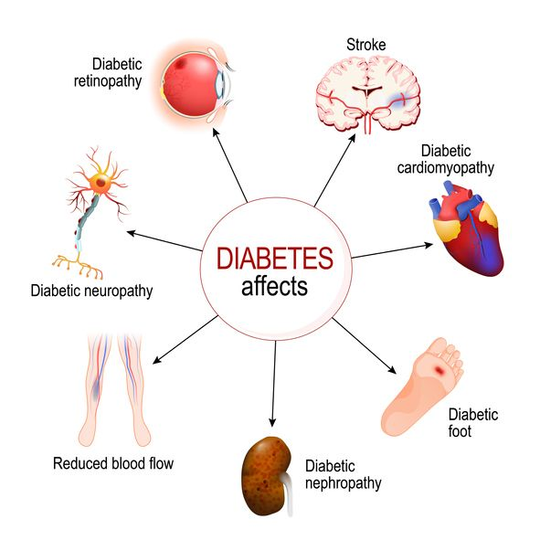 Common diabetic complications