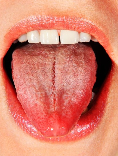 cracked tongue mouth ulcers